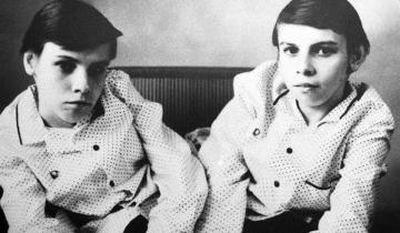 Маша и Даша Кривошляповы: тяжелая судьба советских сиамских близнецов