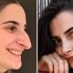 5 фотографий обычных девушек, которые преобразились после ринопластики