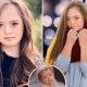 Девушка, от которой советовали избавиться после рождения, через 15 лет стала успешной моделью