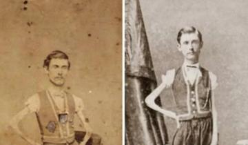 История артиста цирка Исаака Спрэга, которого считали самым худым человеком в 19 веке