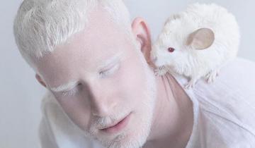 Фарфоровая красота: удивительные снимки альбиносов