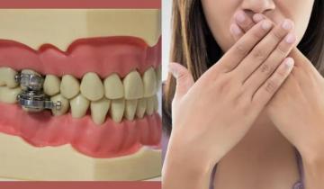 Передовое средство для похудения. Рот просто не открывается для еды.