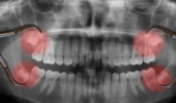 Зачем природа придумала зубы мудрости и почему они не растут у жителей Мексики