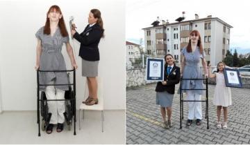 Невеселый рекорд: турчанка Румейса Гельги стала самой высокой женщиной в мире